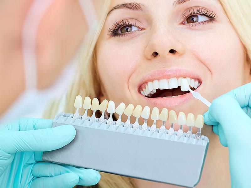 vellore woods dentistry teeth whitening