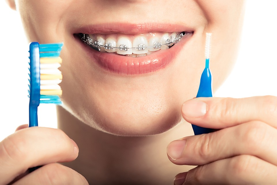 7 ways to keep your braces clean