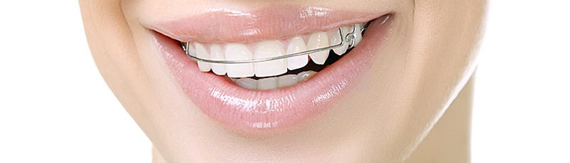 8 tips to keep your retainer safe and clean