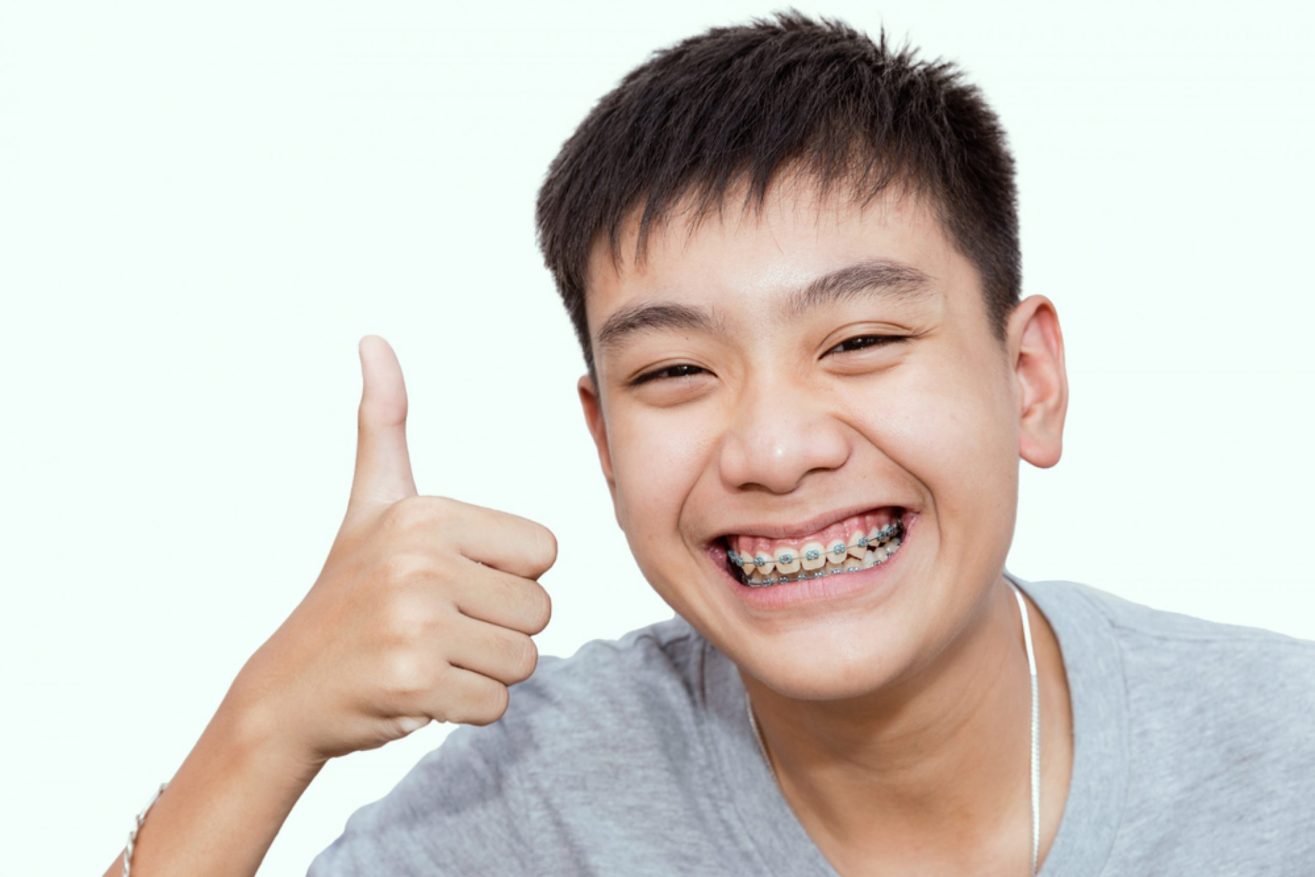 guide 101 everything to consider about braces for kids