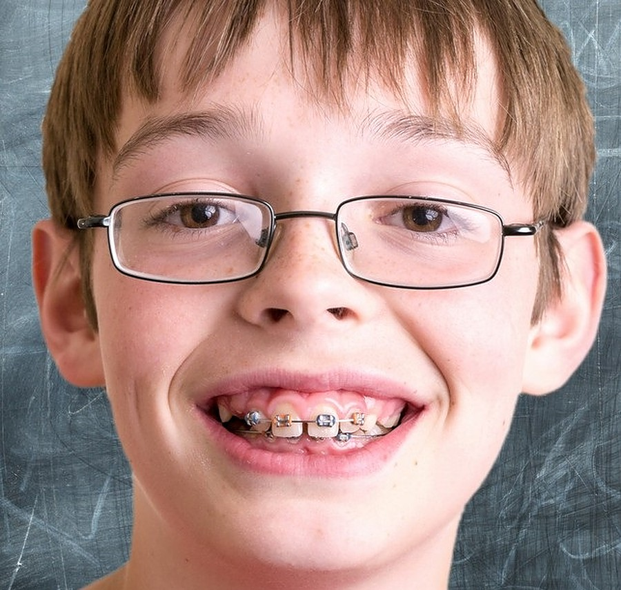 the history of braces everything to know