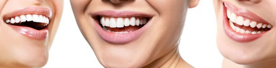 what happens when you get your teeth whitened