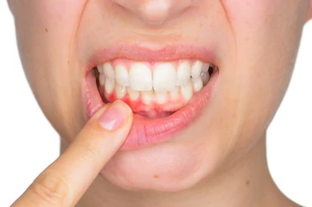 why you shouldn't ignore blood when brushing