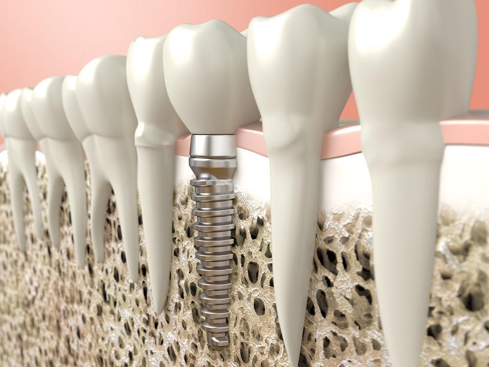 five under the radar benefits of dental implants