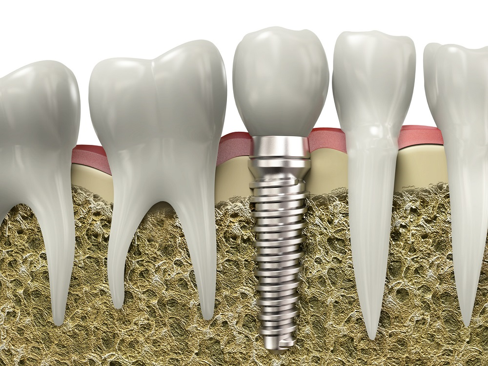 what makes dental implants such a good option for replacing teeth